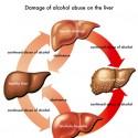 Cirrhosis Liver
